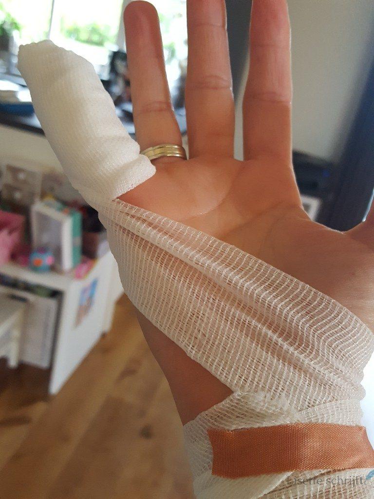 de clever cutter is erg scherp in mijn vinger geknipt Lisette Schrijft